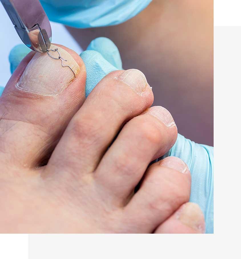 Zakładanie klamry metalowej na paznokieć