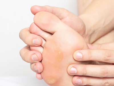 Modzele - bolesna zrogowacenie na podeszwie stopy