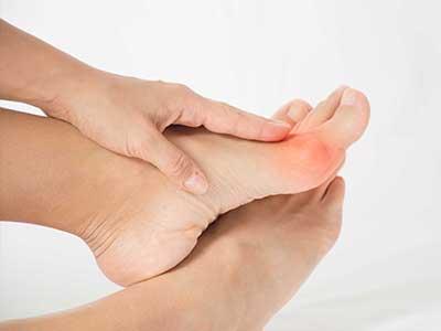 Halluks, czyli paluch koślawy - poważna deformacja stopy